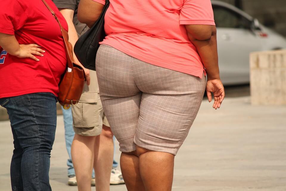 Cirugía para perder peso: ¿Es una buena opción?